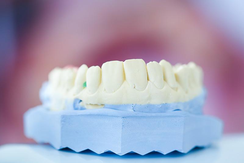 dentures wayne pa dr vito prosthodontist