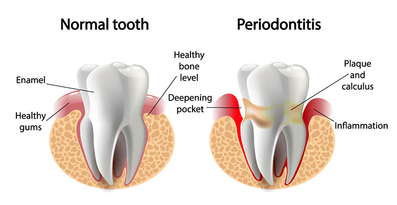 healthy and unhealthy teeth periodontics