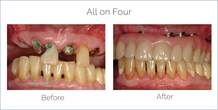 before and after all on four dental procedure