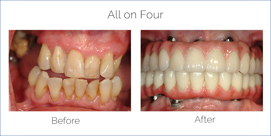 all on four dental implants before and after