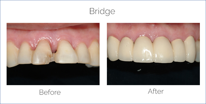 bridge before and after