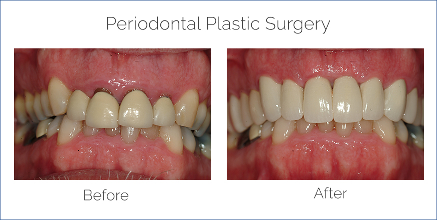 periodontal plastic surgery before and after