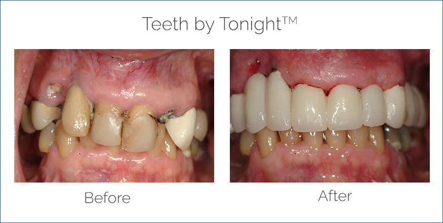 before and after teeth in a day