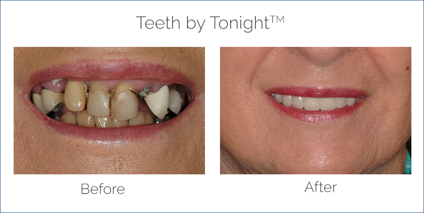 teeth in a day before and after
