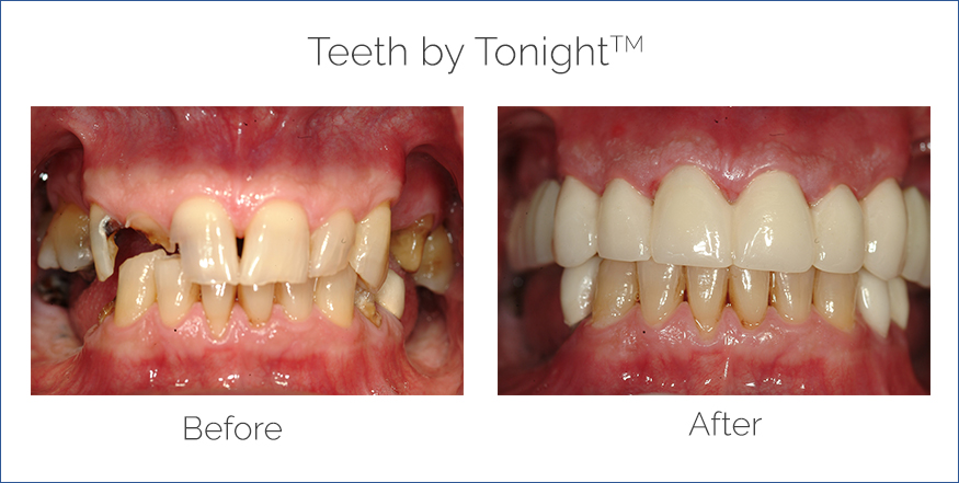 before after teeth by tonight