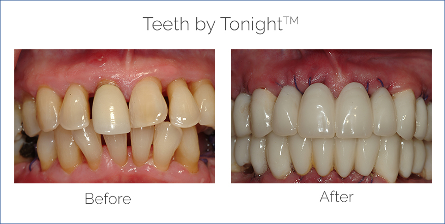 teeth by tonight before after