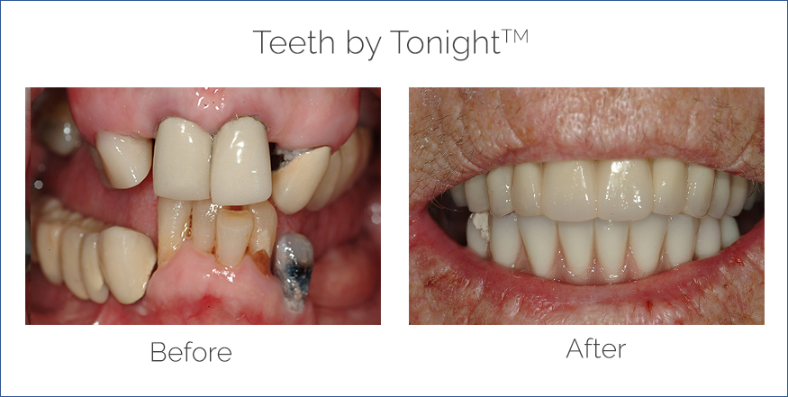 before and after teeth by tonight