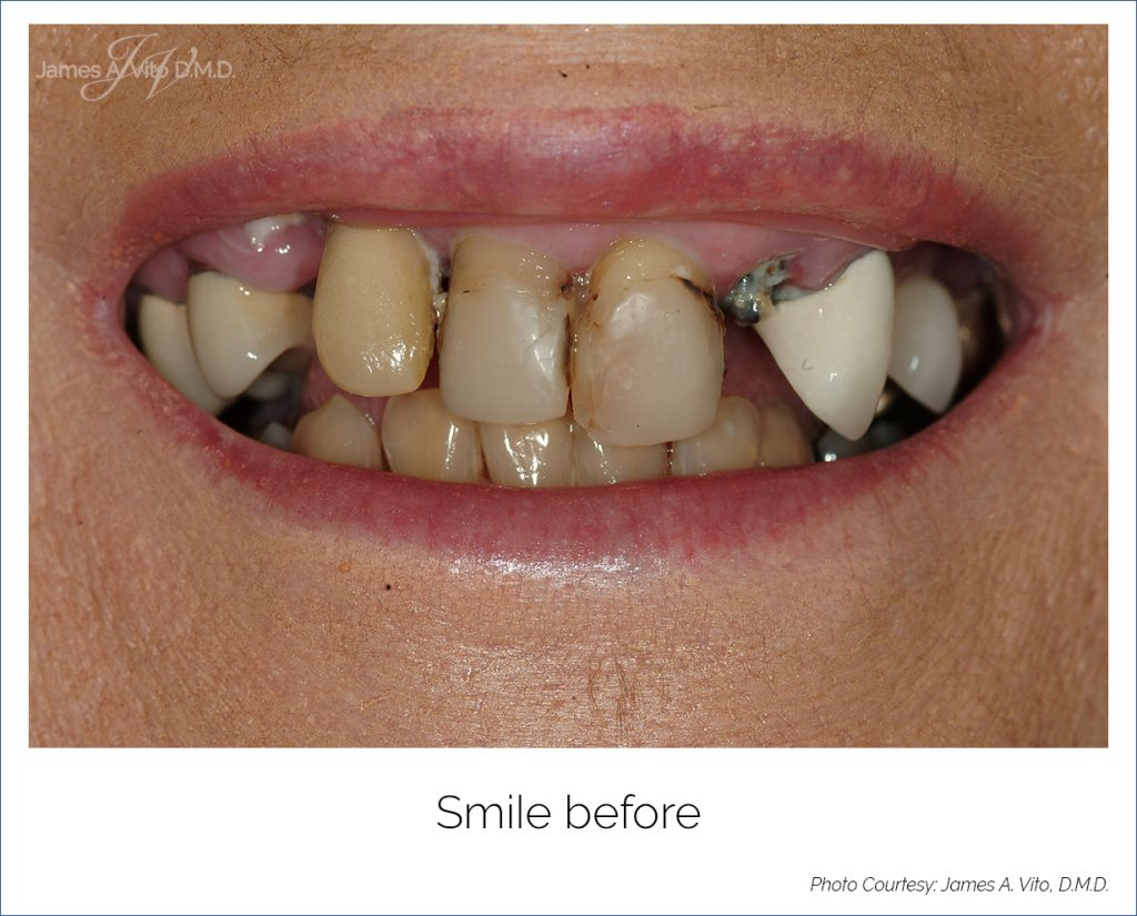 Teeth by Tonight Before and After
